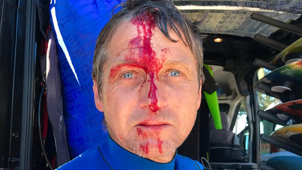 Bloody crash - with Epic Kites Kiteboarding