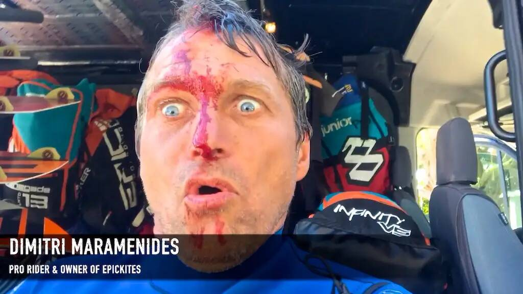 EPIC CRASHES 3. No pain No gain - with Epic Kites Kiteboarding